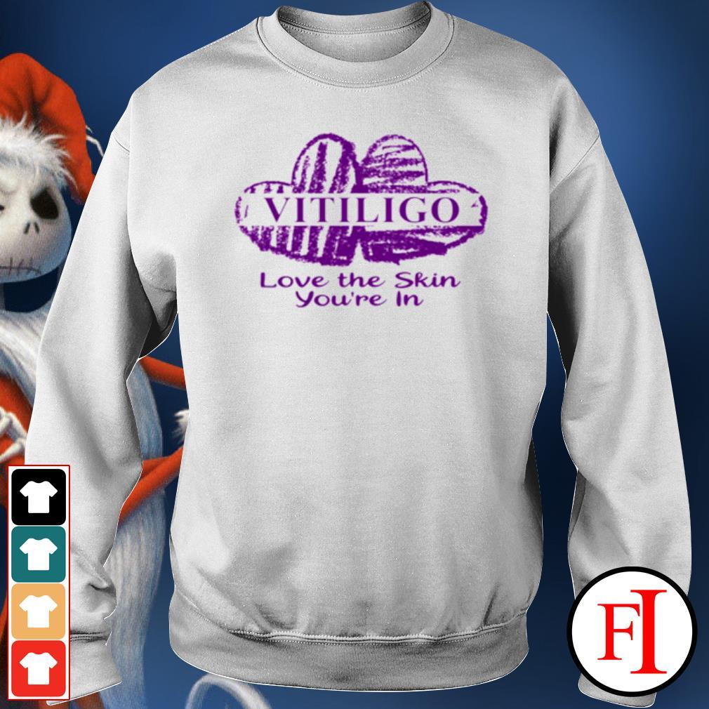 Vitiligo love the skin you're in s sweater